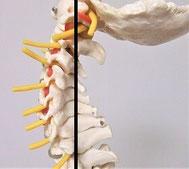 骨格模型で正常な首を重心線で示した画像