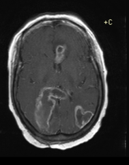 multifocal Glioblastoma multiforme contrast