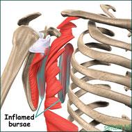 肩甲骨の痛み原因