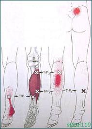 ふくらはぎ筋肉緊張からくる踵の痛み