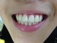 キレイな歯ならびになりました!