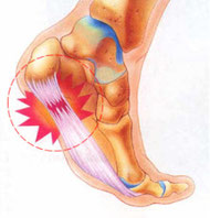 踵骨棘足底腱膜炎
