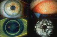 Diagnostic images of eye