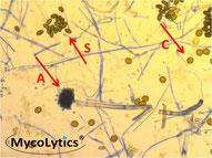 MycoLytics - Aspergillus, Chaetomium in Direktmikroskopie,Kultivierung, Schimmelpilze, Bakterien, Holzzerstörer, Luft-, Staub-, Materialproben