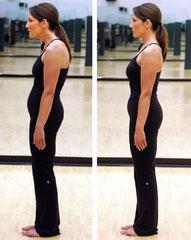 Examen statique postural