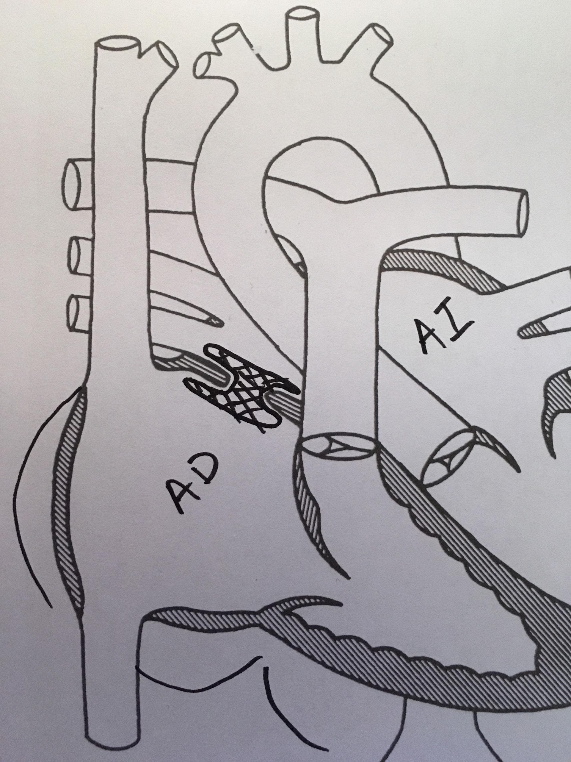 Comunicación Interauricular (CIA) - Cardiología Pediátrica/ Área del ...