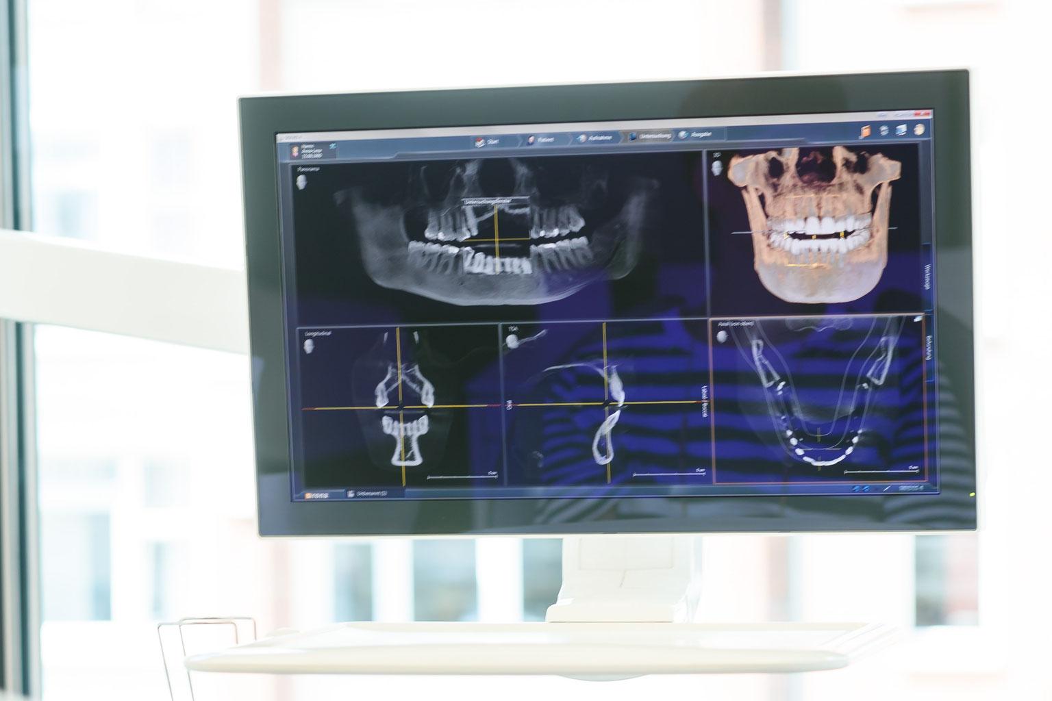 Digitales Röntgen (2D/ 3D) - Praxis Dr. Jakob - Ihr Zahnarzt in Hamburg!