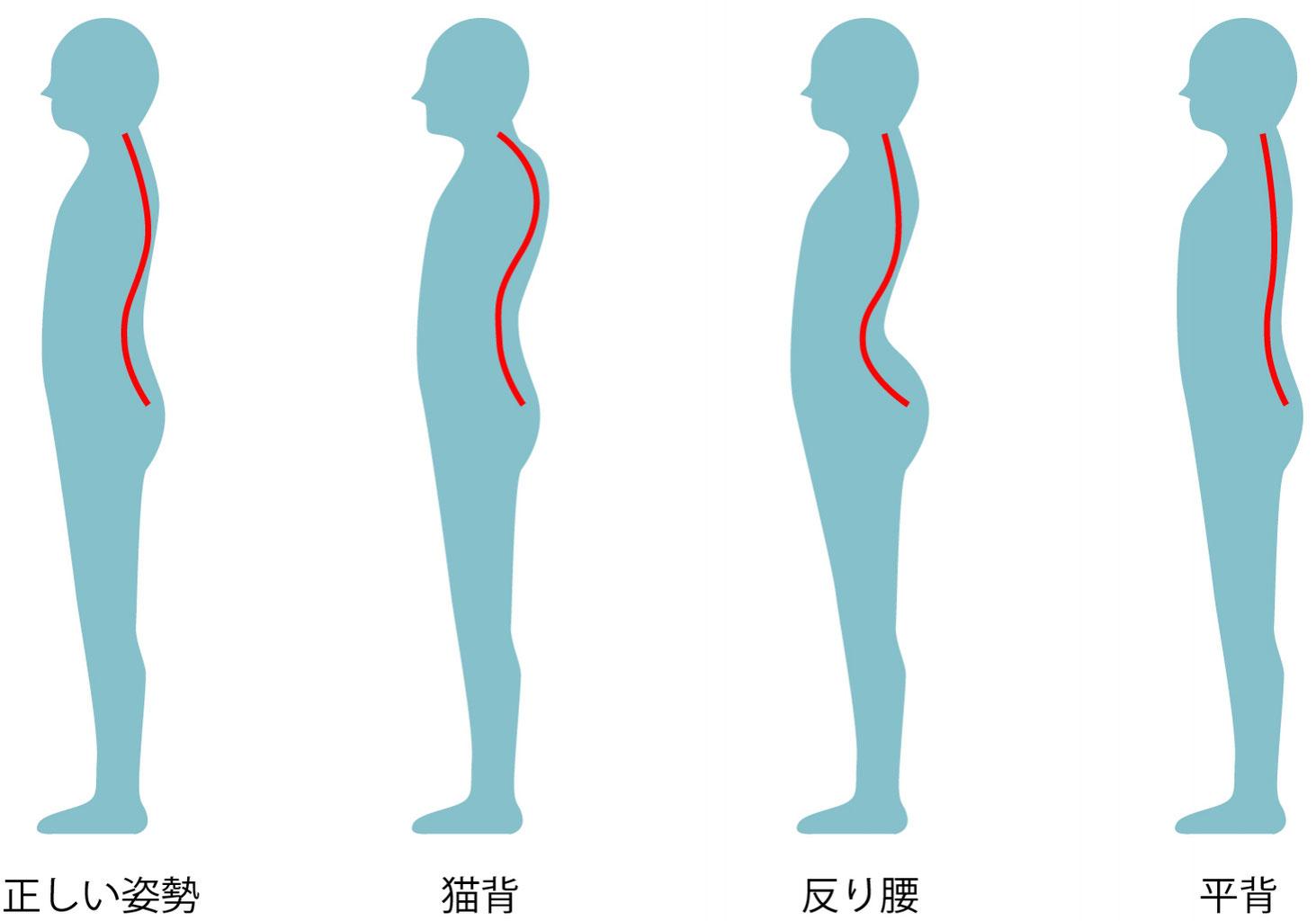 ねこ背・肋骨背中痛、側弯症を首や腰から変える整体院 - 整体ゆあさ ...