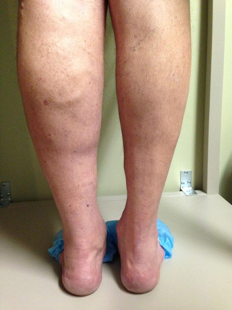 Venous insufficiency: Causes, Symptoms & Diagnosis - Vein ...