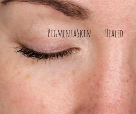 Permanent Make up, Sommersprossen