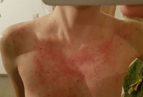 Skin Picking Kurz danach