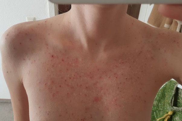 Skin Picking Das Ausmaß