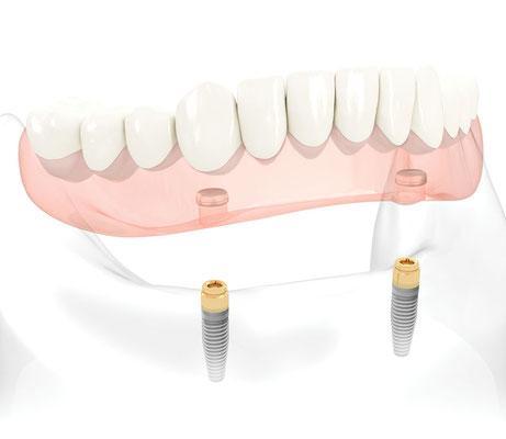Klik-prothese op 2 Nobel Biocare implantaten met locator systeem