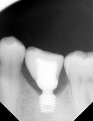 Rx-beeld van Bicon implantaat met kroon: vervanging van een verloren gegane tand