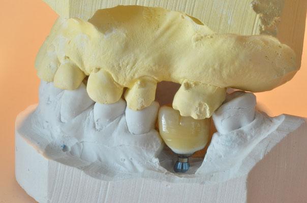 Trinia-Ceramage implantaatkroon op model in occlusie