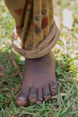 kleine Füße stark befallen