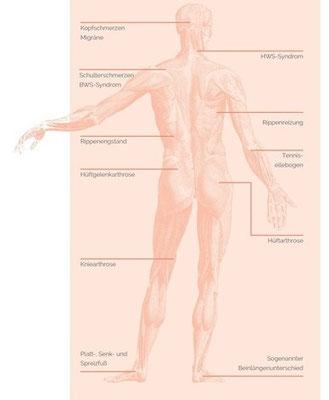 Auswirkungen einer Kiefergelenksfehlstellung