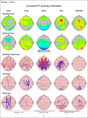 Verschiedene Teilauswertungen eines quantitativen EEGs. 19 Elektroden messen jedes einzelne Hertz der Hirnaktivität und dessen Abweichungen von einer gesunden Normpopulation.