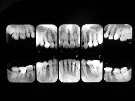 見えない箇所の虫歯、歯周病の進行などを正確に診断するためにレントゲンを撮ります。