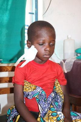 Francis, ein sechsjähriger Junge, war auf beiden Augen blind