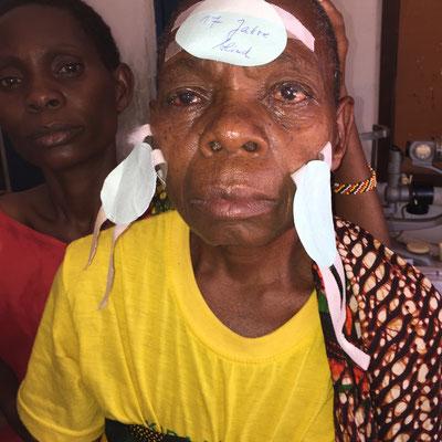 Diese Patientin war 17 Jahre blind