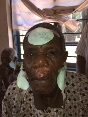 Dieser Patient war 10 Jahre blind