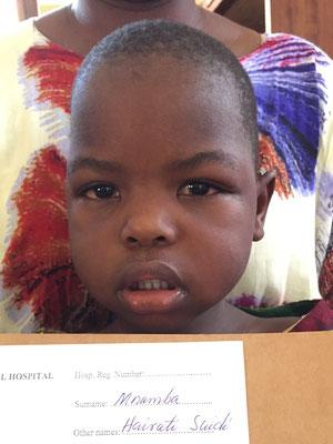 Die 4-jährige Hairati sechs Tage nach beidseitiger Star-Operation