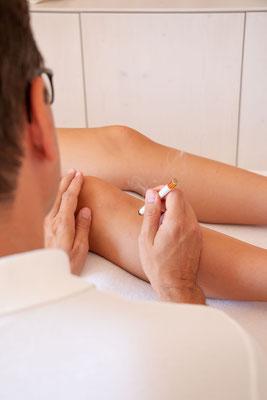 Moxaanwendung auf Akupunkturpunkt Ma36