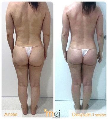 caso real bioslimming: antes y después 1 sesión