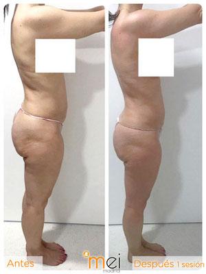 caso real bioslimming: antes y después