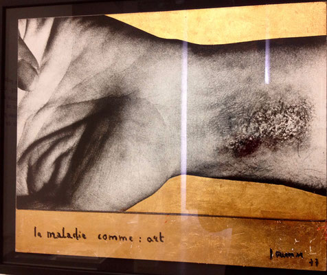 59bis -Journiac La maladie comme art