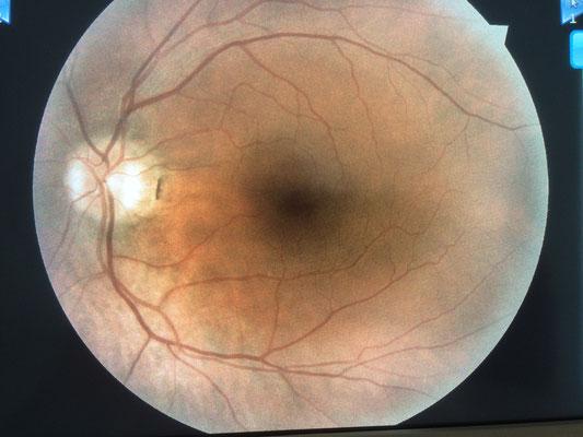 Mein Augenhintergrund des linken Auges