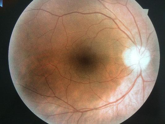 Mein Augenhintergrund des rechten Auges