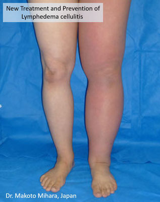 New treatment and Prevention of Cellulitis, Lymphedema Treatment Japan