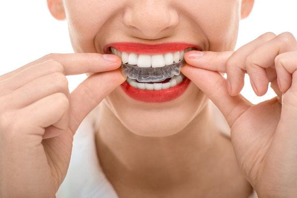Fotolia 74674535 - Wearing orthodontic silicone trainer © rh2010