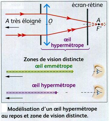 Modélisation d'un oeil hypermétrope. Source :  Nathan, SVT, 2011 p29.