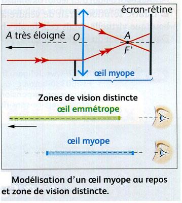 Modélisation du trajet des rayons lumineux pour un oeil emmetrope (sans défaut) en haut et myope en bas. Source:  Nathan, SVT, 2011 p29.