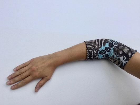 PICC 06 - Venenkatheter am Arm - schwarz weiss türkis gemustert