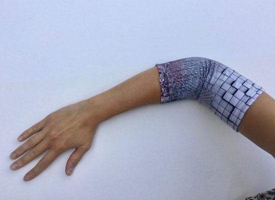 PICC 03 - Venenkatheter am Arm - weiss grau gemustert