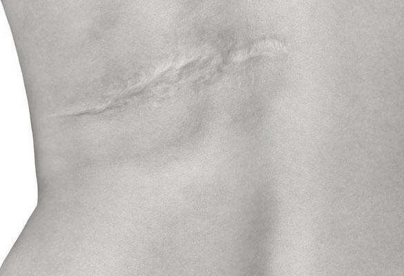 Was bleibt sind Narben