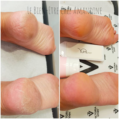 Soin Yumi Feet anti callosités