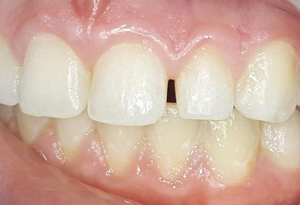 Zwischen den schneidezähnen grosse zahnlücke Patientenfrage: grosse