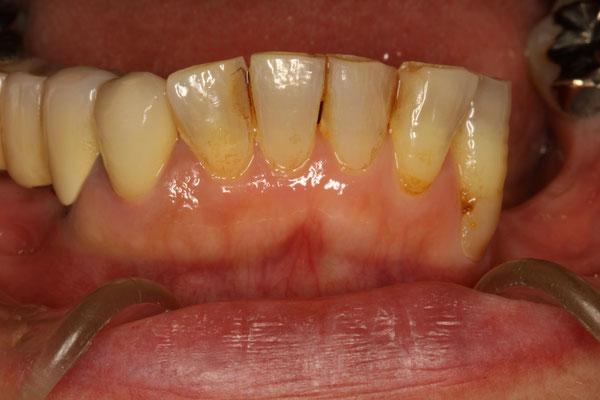 色々なタイプの歯茎の下がり方