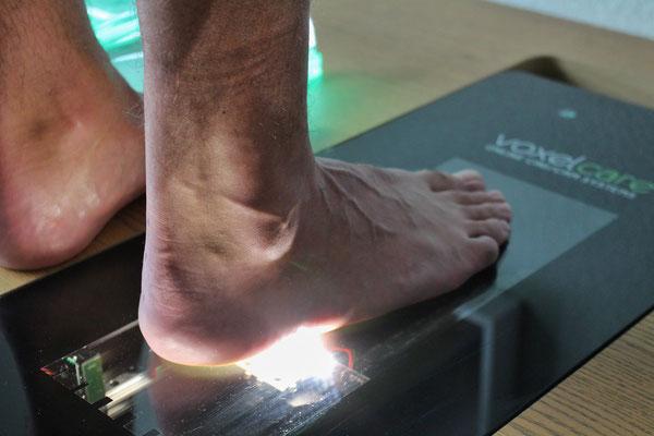 3d voetscan