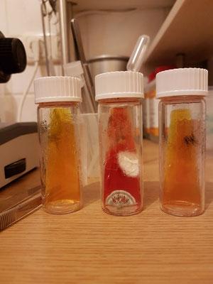 Hier drei Proben Zur Diagnose von Hautpilzen (Dermatophyten, Mykosen).