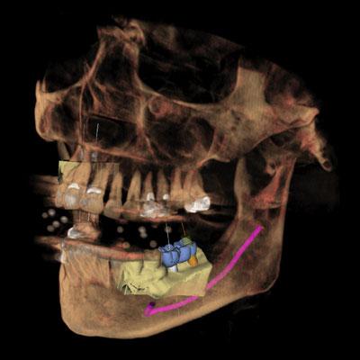 3D Röntgenaufnahme Zahnarzt Essen - Praxis Dr.Koravi