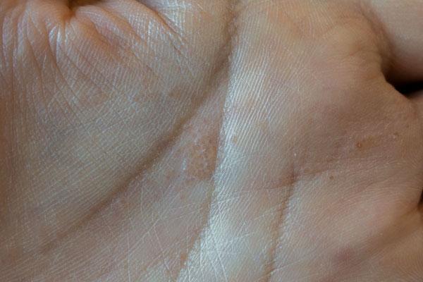 手のひらにできた汗疱