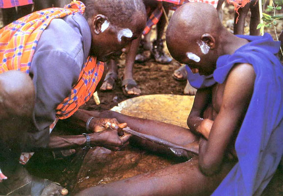 Circoncisione maschile tra i Masai.