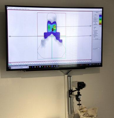 Die Satteldruckmessung mit 64 Sensoren zeigt genau auf, ob der Sattel richtig eingestellt ist und zur Anatomie des Beckens passt