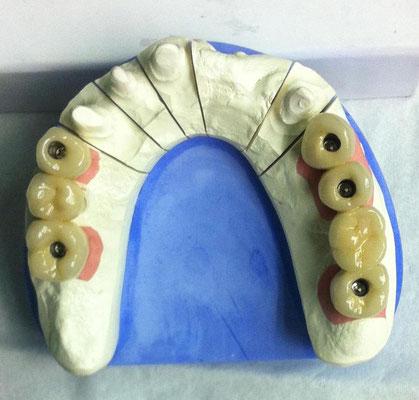 Oberkiefermodell mit 5 Implantaten verschraubt Ansicht von oben
